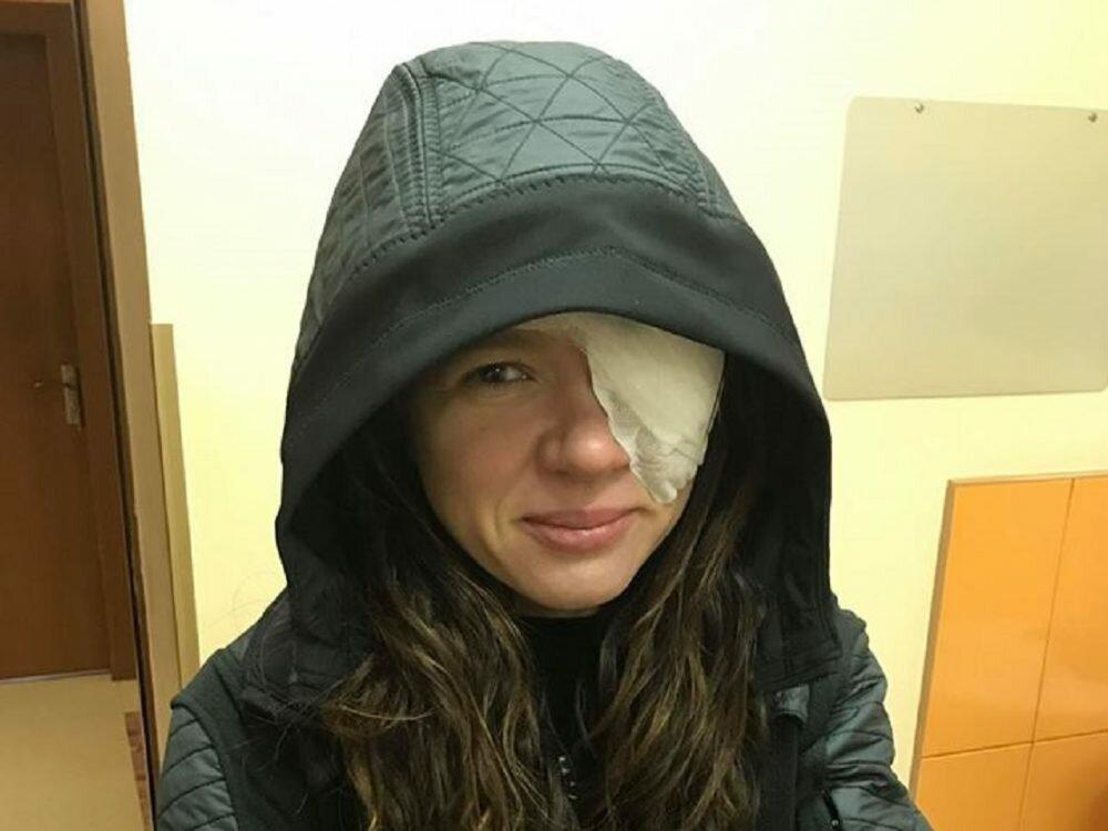 Срочная операция налице эстрадной певицы Русланы: исполнительница впервый раз поведала одиагнозе
